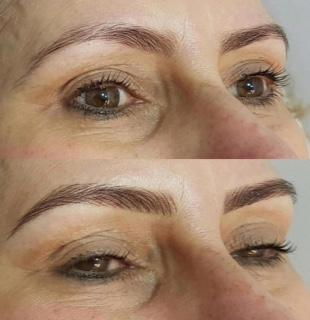 Eye Brow Courses – College of Dermal Therapies