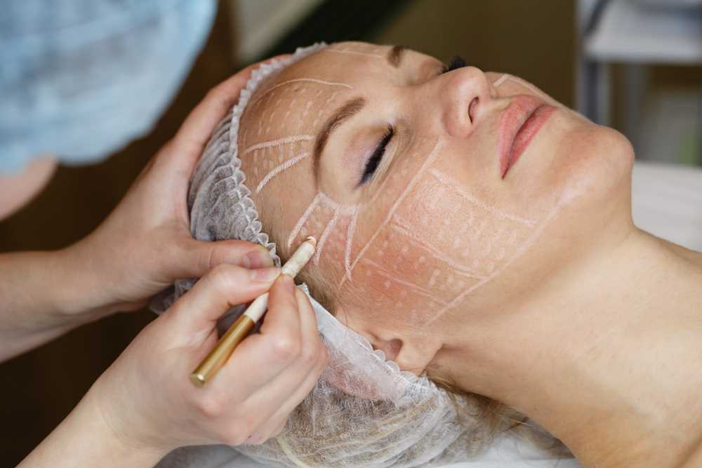 Fractional RF Skin Tightening
