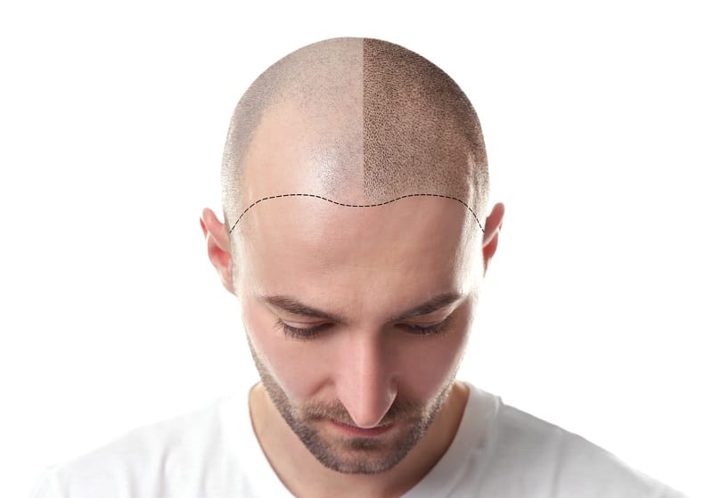 Scalp MicroPigmentation Training you Need