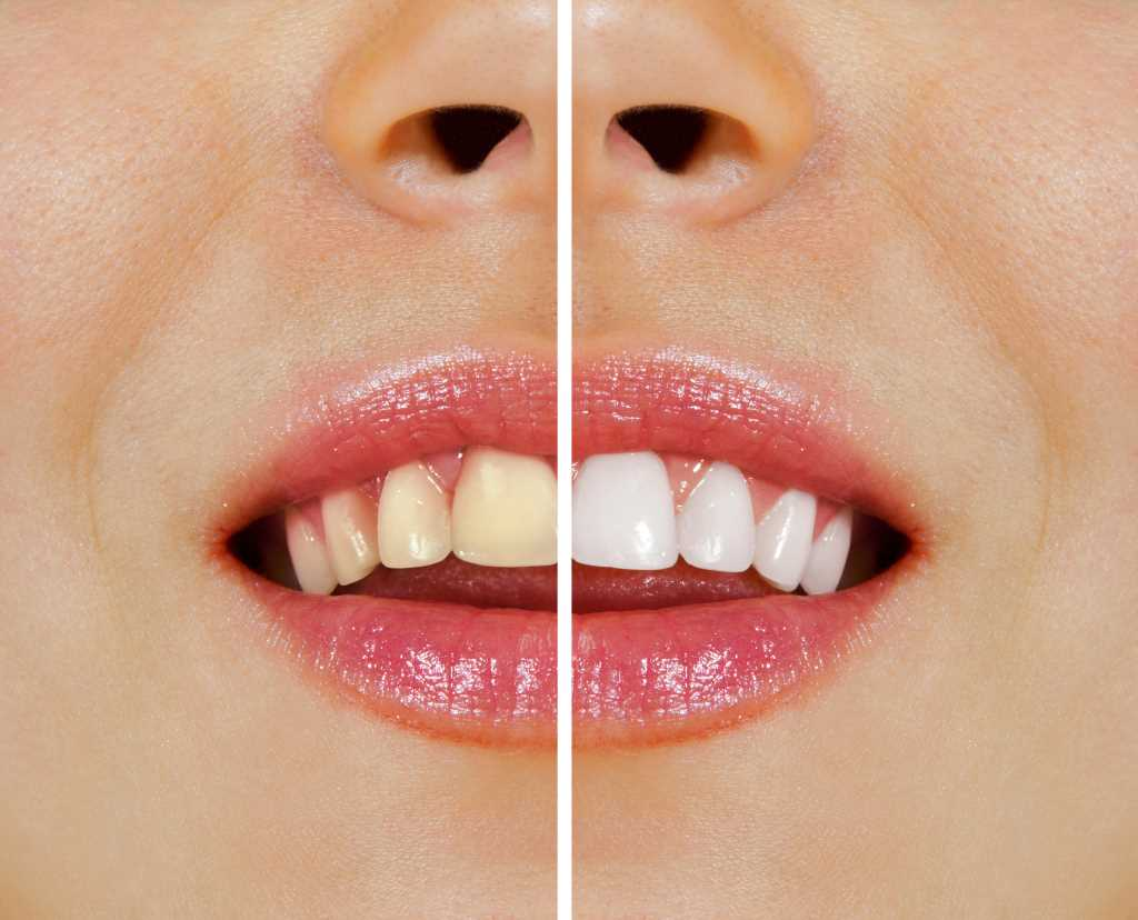 Our Top Teeth Whitening Course is The Perfect Solution